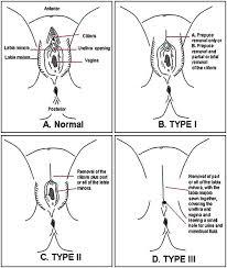 Types of FGM